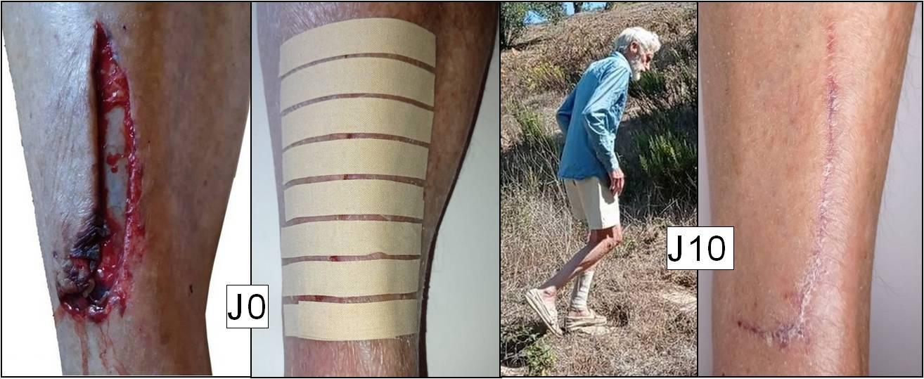 Laisser cicatriser une jambe ouverte jusqu'à l'os sur 12 cm sans points de suture, sans désinfectant, sans antibiotique ni aucune mesure d'hygiène, cela sans trace d'infection ni rougeur ni douleur : découvrez dans cette vidéo la nouvelle expérience révolutionnaire du recordman mondial de crudivorisme intégral...
