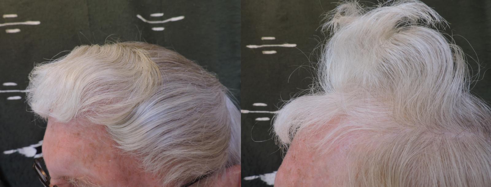 Miracle ! Repousse des cheveux à 84 ans avec une alimentation instinctive