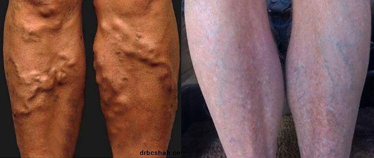 Des varices aux maladies auto-immunes, en passant par le cancer