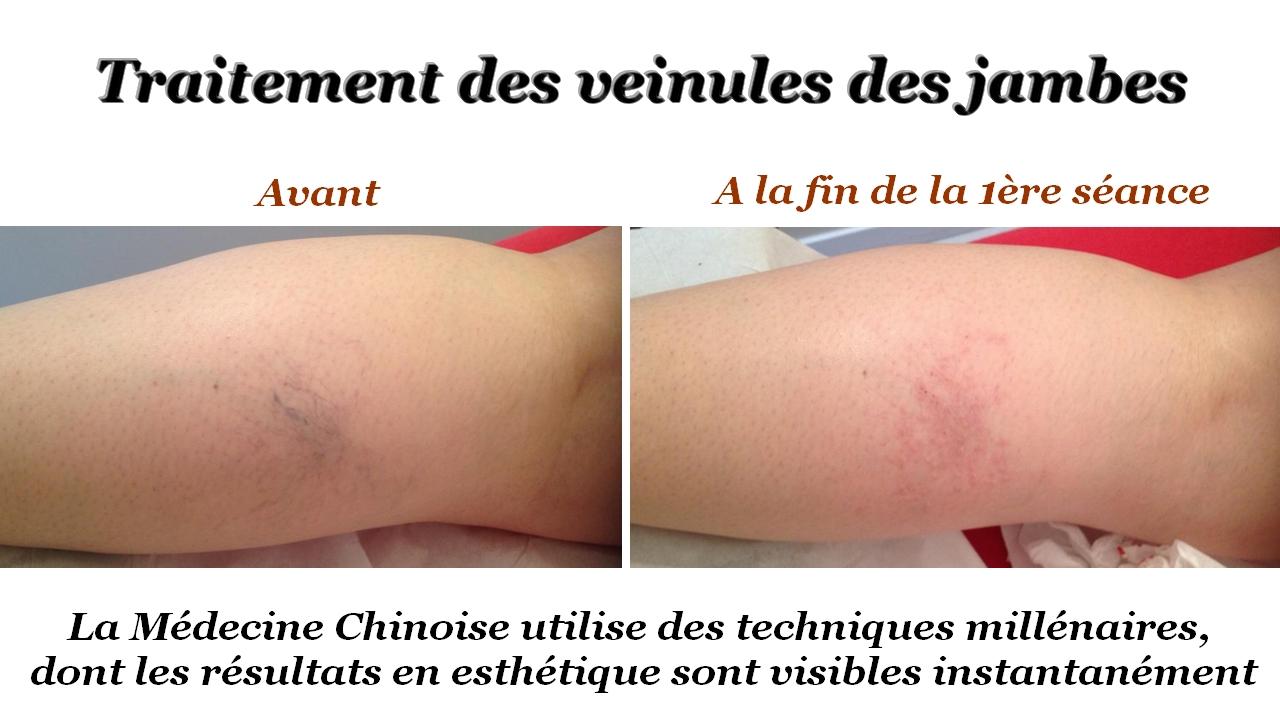 Traitement des veinules des jambes
